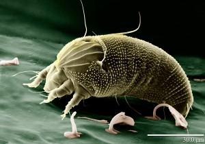 Die Gallmilbe (Aceria anthocoptes) ist höchstens 0,3 Millimeter gross und ernährt sich von Pflanzensäften. Zu ihren wichtigsten natürlichen Feinden zählen die Raubmilben, die im Obst- und Beerenbau als Nützlinge eingesetzt werden. (Quelle: Koordinator Internationales Jahr des Bodens 2015)